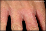 IRRITANT CONTACT DERMATITIS_02.JPG