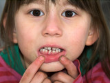 2007-03-28 Nicole loosing a tooth