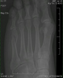Brenda's Broken Foot - Left Foot Bone - Can You See The Difference?