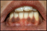 PIGMENTED TEETH+GUM.jpg