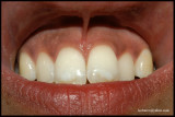 PIGMENTED TEETH+LABIAL MUCOSAE+GUMS.JPG