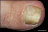 TOENAIL FUNGAL INFECTION.JPG