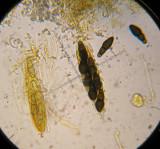 Splanchnonema foedans asci with mature and  immature spores on old fallen elm twig CarltonWood Feb-14 HW.jpg
