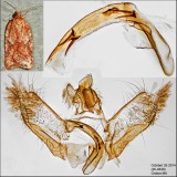 3521.1 - Acleris stadiana (male)