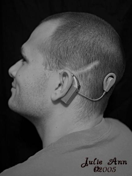 Cochlear Implant<br>5/07/05