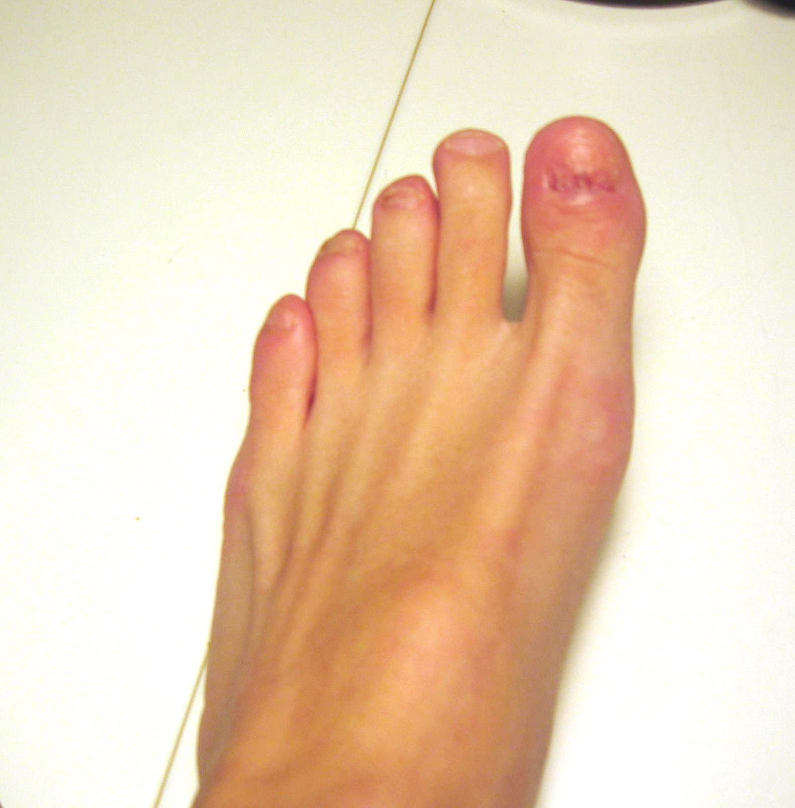 Recovery from permanent toenail removal Photo Gallery by