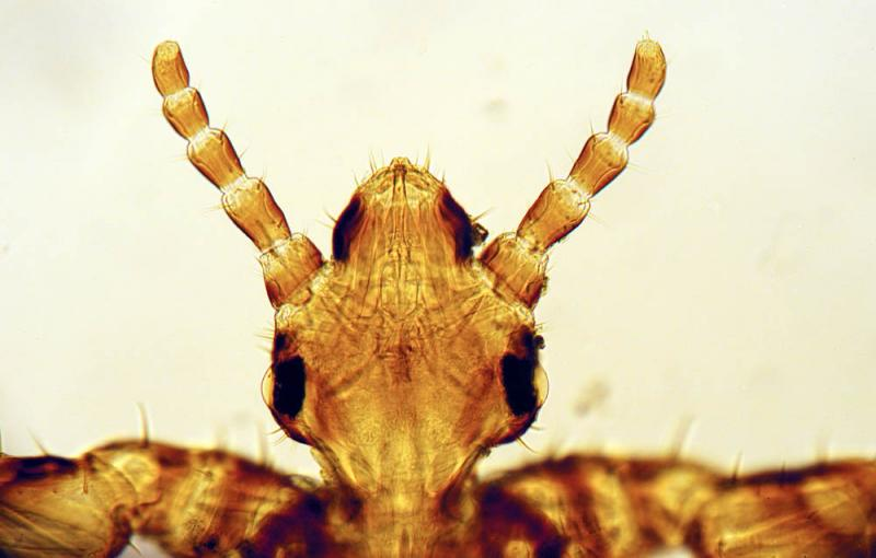 Pediculus-capitis-head.jpg
