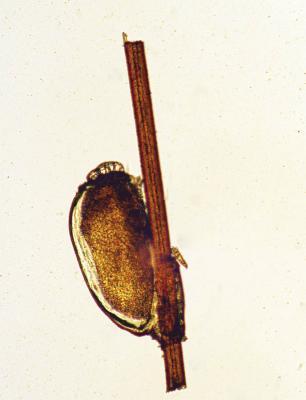 Pediculus-capitis-egg.jpg
